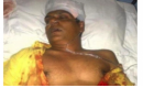 Moosa Manik in Intensive Care following a brutal assault 8.2.12